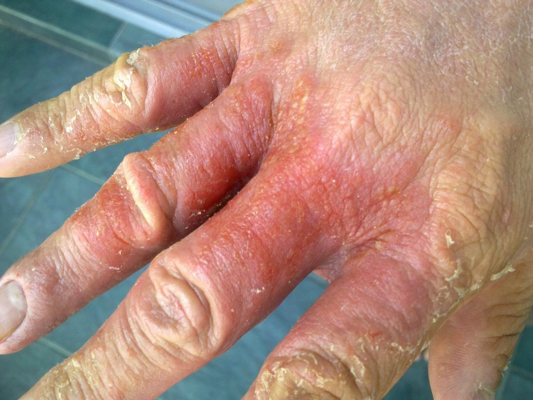 Atopic dermatitis - Wikipedia